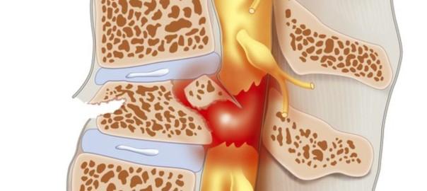 spinal cord injury stem cells PRP