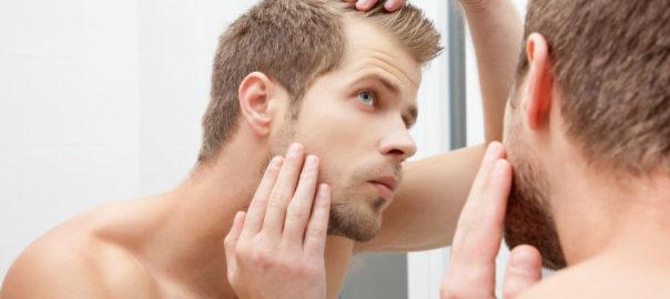 Male Patterned Baldness